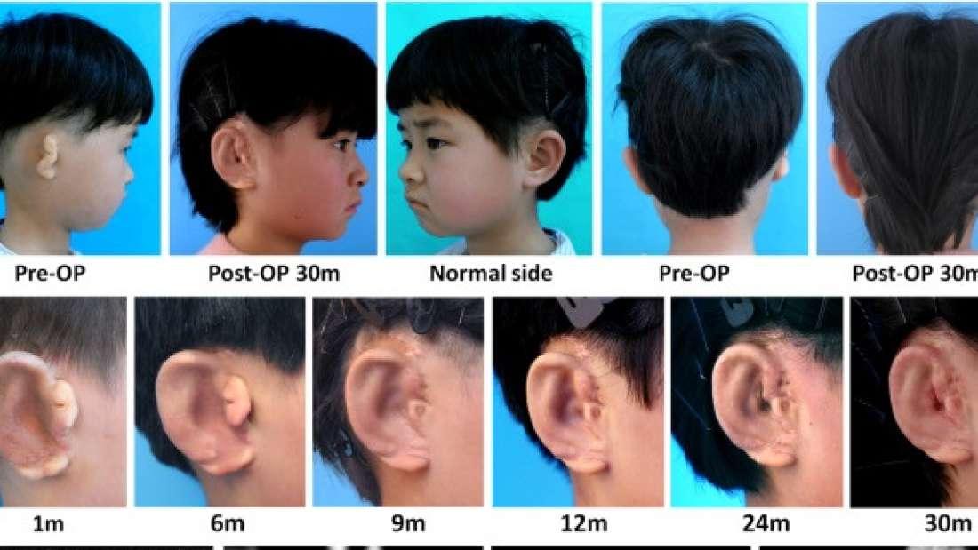 orecchio-ricreato